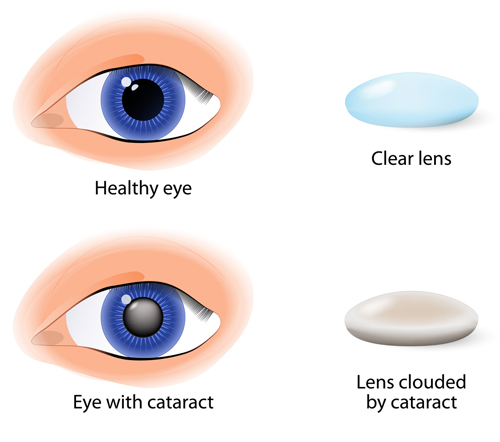 Healthy Eyes and Eye with Cataract