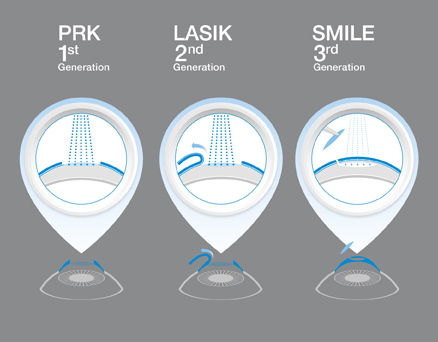 prk vs lasik vs smile