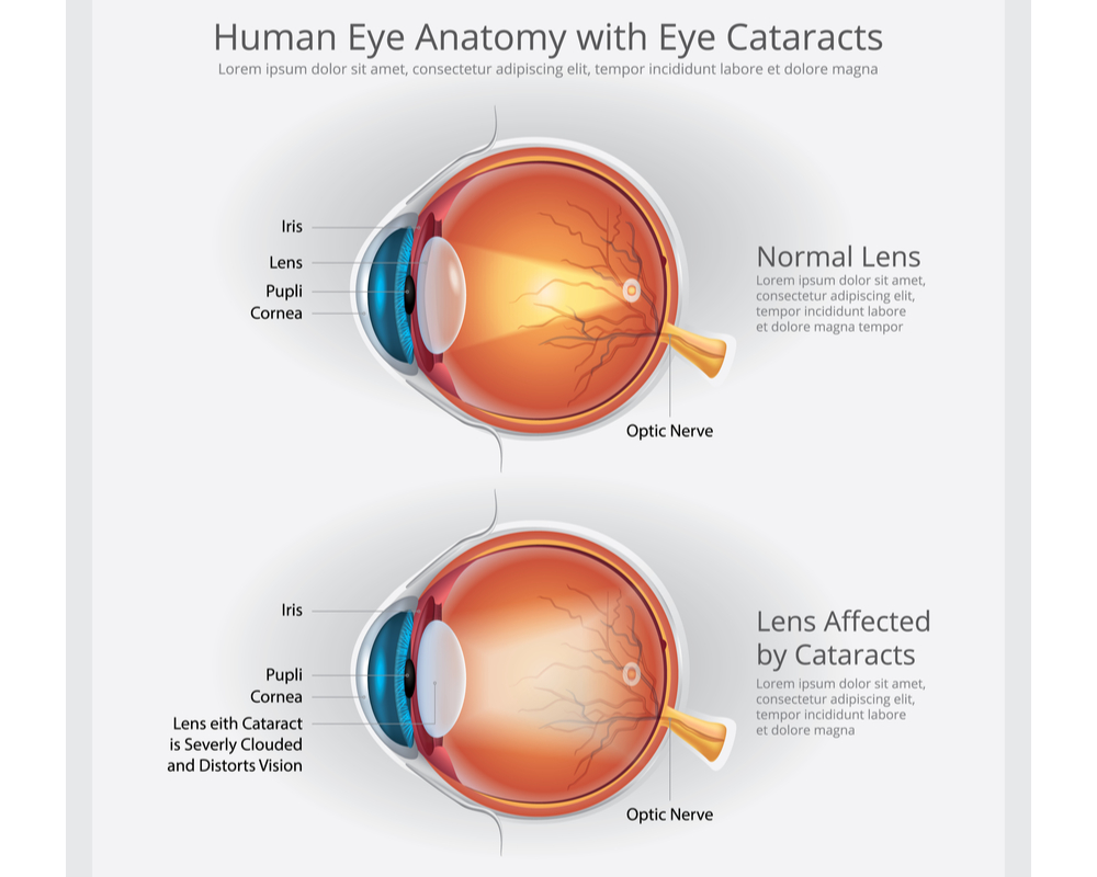 Human Anatomy with Cataract in Atlanta